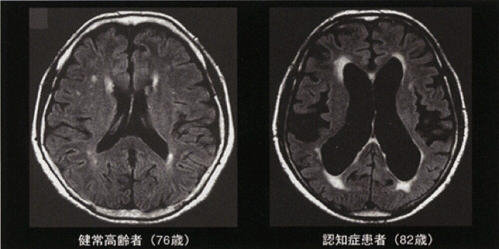 脳委縮のCT画像