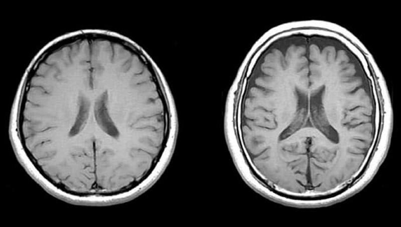 脳萎縮のCT写真