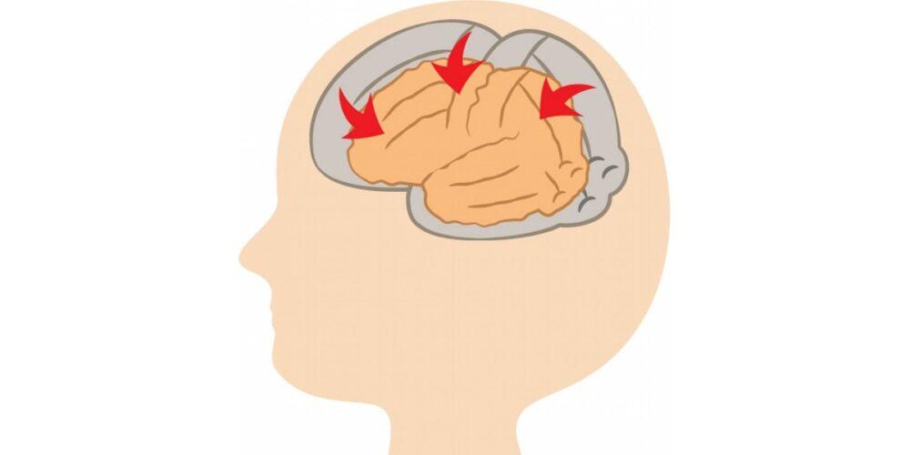 アルコール依存症の末期症状、脳萎縮
