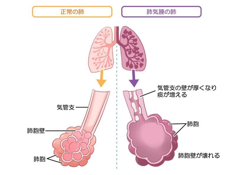 肺気腫とは